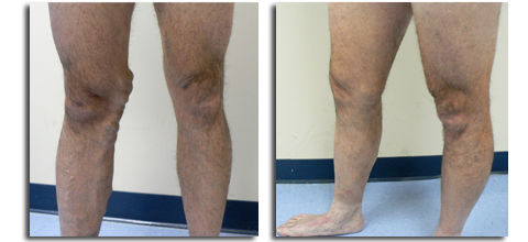 vein before after photo